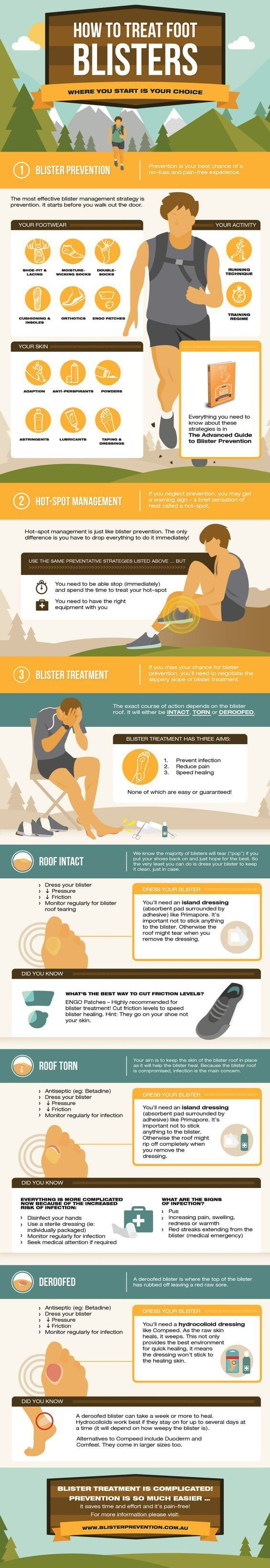 Cómo tratar las ampollas de los pies #infografía