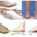Consejos para comprar calzado ortopédico
