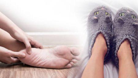 Problemas en los pies en invierno